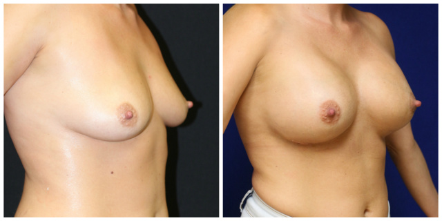 West Palm Beach Breast Augmentation - Before and After Breast Augmentation West Palm Beach