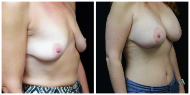 Breast Lift West Palm Beach - Before and After West Palm Beach Breast Lift