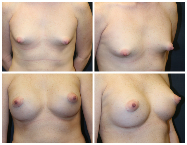 Breast Lift West Palm Beach - Before and after West Palm Beach Mastopexy