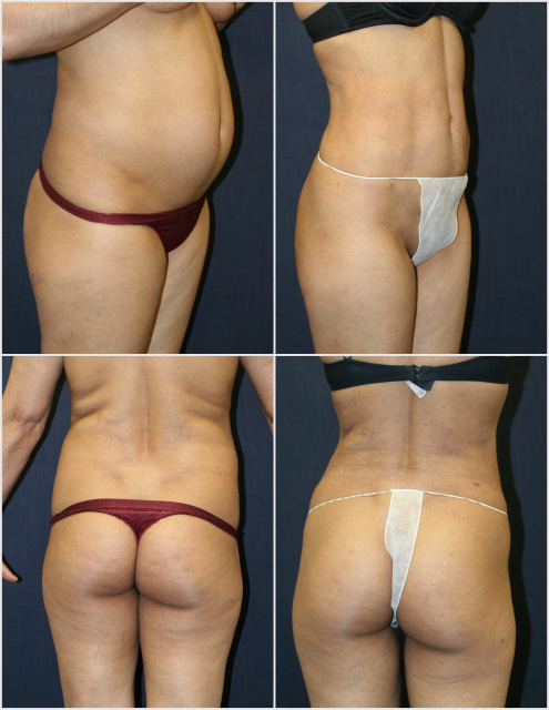 West Palm Beach Body Contouring - Before and after Body Contouring