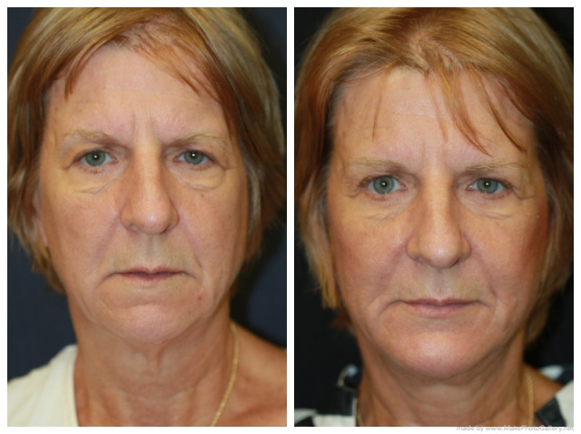 Palm Beach Chin Augmentation - Before and After Chin Implant Palm Beach