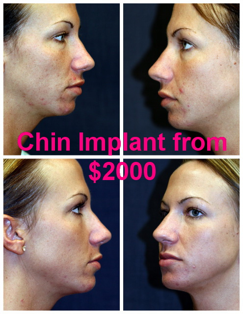 West Palm Beach Chin Implant - Before and After Chin Augmentation West Palm Beach