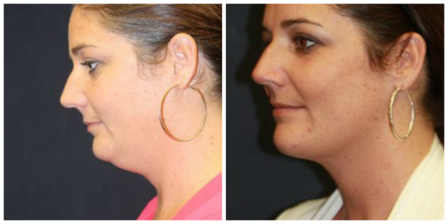 West Palm Beach Double Chin - Before and After Double Chin Surgery West Palm Beach