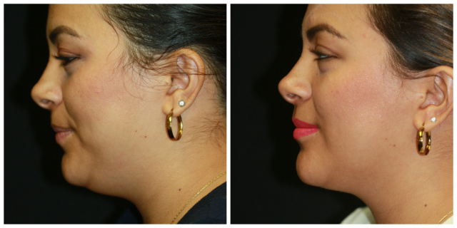 West Palm Beach Double Chin Treatment - Before and After Double Chin West Palm Beach