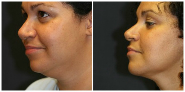 West Palm Beach Double Chin Surgery - Before and After Double Chin Treatment West Palm Beach
