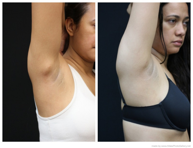 Lipoma Removal West Palm Beach - Before and After West Palm Beach Lipoma Removal