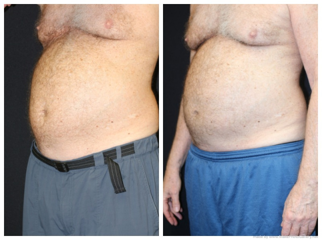 Palm Beach Coolsculpting - Before and After Coolsculpting West Palm Beach