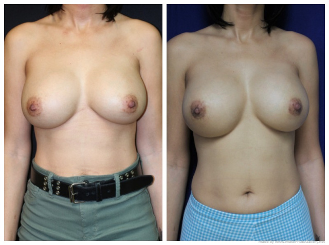 Palm Beach Breast Implant Revision - Before and After Breast Implant Revision West Palm Beach