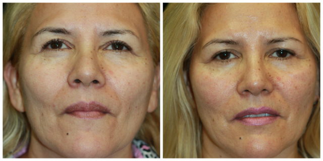 West Palm Beach Blepharoplasty - Eyelid Surgery West Palm Beach