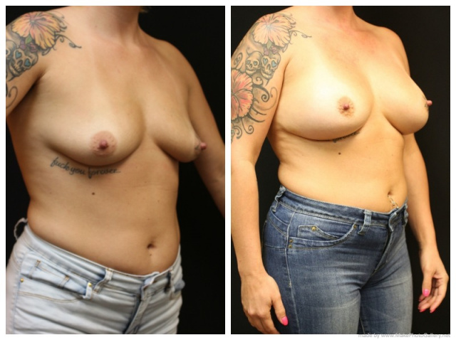 Palm Beach Breast Implants - Before and After Breast Implants