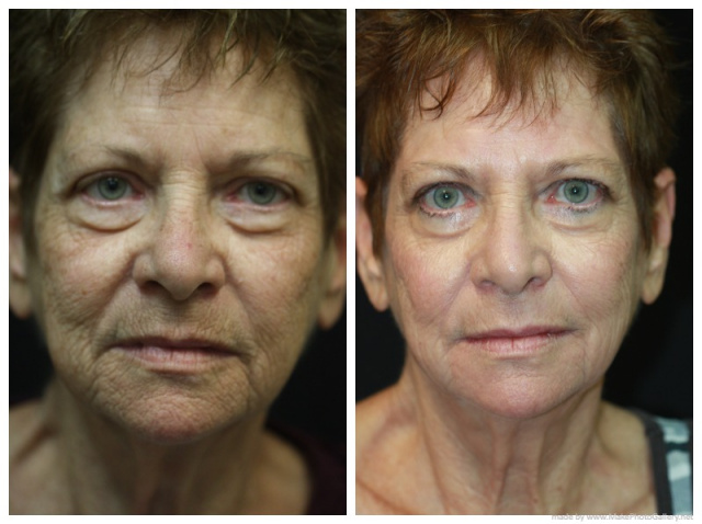 Palm Beach Laser Resurfacing - Before and after Laser Resurfacing Palm Beach