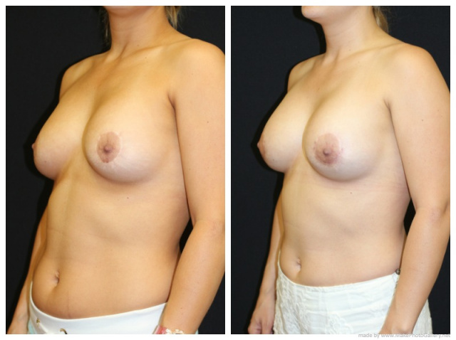 West Palm Beach Breast Implant Removal - Breast Implant Removal West Palm Beach