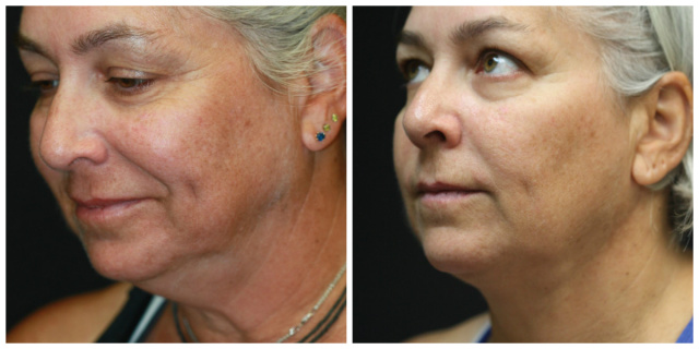 West Palm Beach Double Chin - Pre and Post Double Chin Treatment West Palm Beach using Neck Liposuction West Palm Beach