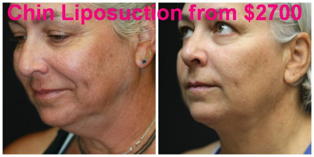 West Palm Beach Chin Liposuction - Before and after Neck Liposuction West Palm Beach