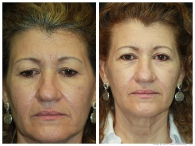 West Palm Beach Eyelids Surgery - Before and After Upper Blepharoplasty Palm Beach