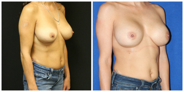 Palm Beach Breast Implant Revision - Breast Implant Exchange Palm Beach