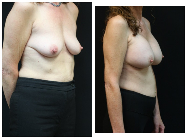 West Palm Beach Breast Augmentation - Before and After Breast Augmentation Palm Beach