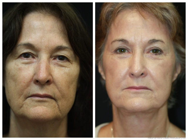 Palm Beach Necklift - Before and After Necklift Palm Beach