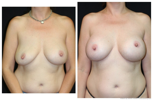 Palm Beach Breast Implant Revision - Before and After Breast Implant Revision Palm Beach