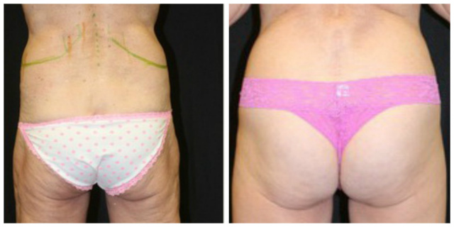 West Palm Beach Coolsculpting Backfolds - Before and after West Palm Beach Nonsurgical Fat Reduction Backfolds