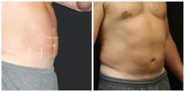 Coolsculpting West Palm Beach Abdomen - Before and after West Palm Beach Nonsurgical Fat Reduction Abdomen