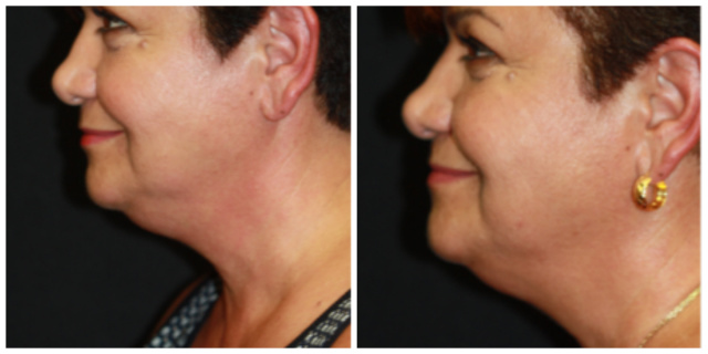 West Palm Beach Coolsculpting Double Chin Palm Beach - Before and After West Palm Beach Double Chin