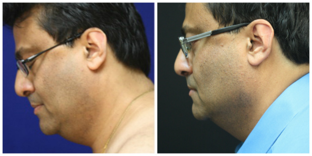 West Palm Beach Double Chin Coolsculpting - Before and after Double Chin Treatment with Coolmini West Palm Beach