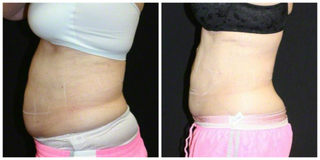 West Palm Beach Coolsculpting Abdomen Love Handles - Before and After Coolsculpting West Palm Beach Abdomen Flanks
