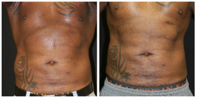 West Palm Beach Coolsculpting Abdomen Flanks - Before and after Nonsurgical Fat Reduction West Palm Beach Abdomen Flanks