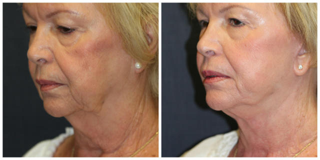 West Palm Beach Necklift - Before and After Neck Lift West Palm Beach