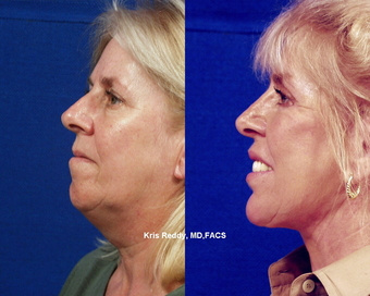 West Palm Beach Dermal Filler - Before and After Dermal Filler West Palm Beach