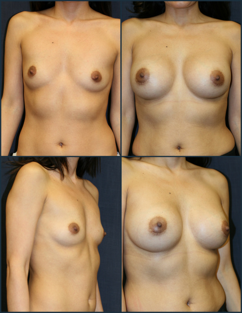 Breast Augmentation West Palm Beach