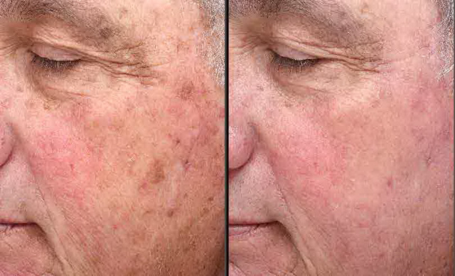 West Palm Beach Sun Damage Patient - Before and After Treatment of Sun Damage in West Palm Beach