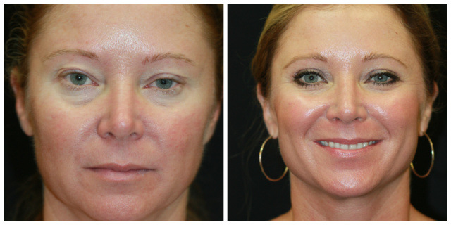 West Palm Beach Eyelids Surgery - Before and After Blepharoplasty