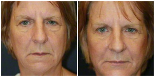 West Palm Beach Blepharoplasty - Before and After West Palm Beach Eyelids Surgery