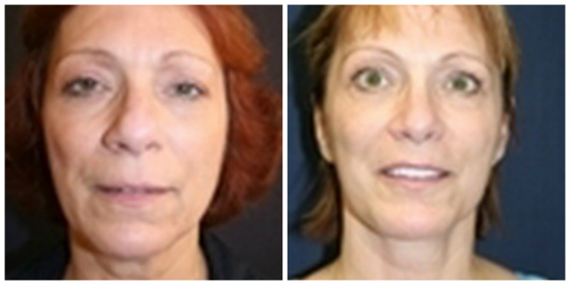 Facelift West Palm Beach - Before and After West Palm Beach Face Lift