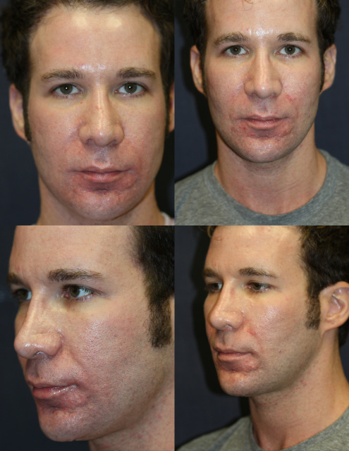 32 year old male in West Palm Beach receiving radiesse to rejuvenate cheeks