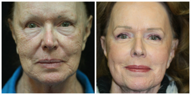 West Palm Beach Blepharoplasty - Before and After Eyelids Surgery West Palm Beach
