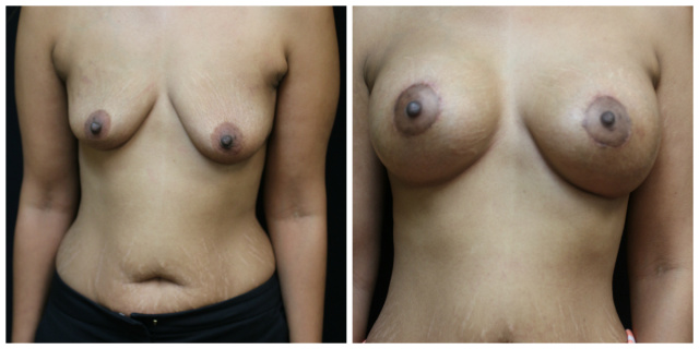 Palm Beach Breast Lift - Before and after Mastopexy Palm Beach