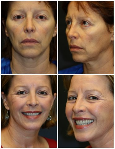 Lower Face Lift West Palm Beach - West Palm Beach Lowerl Facelift