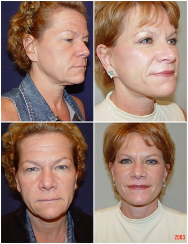 Lower Face Lift in West Palm Beach - West Palm Beach lower facelift