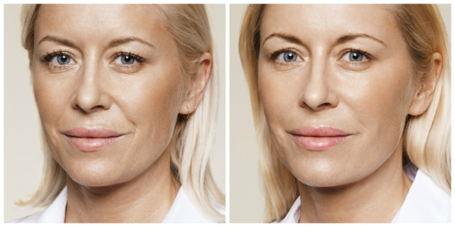 West Palm Beach Dermal Fillers - Before and After Dermal Fillers West Palm Beach