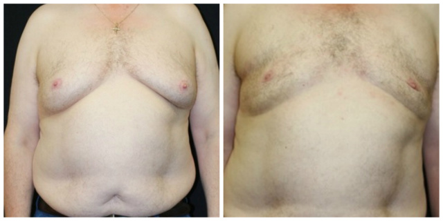 West Palm Beach Gynecomastia - Before and after West Palm Beach Male Breast Reduction