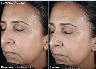 West Palm Beach Skin Care - Before and After Skincare West Palm Beach