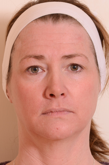 West Palm Beach Sun Damage Patient - After Treatment of Sun Damage in West Palm Beach