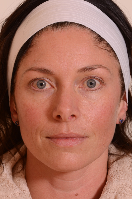 West Palm Beach Sun Damage Patient - Before Treatment of Sun Damage in West Palm Beach