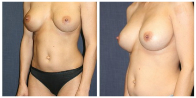 Breast implant exchange Palm Beach