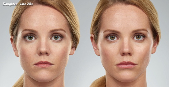 West Palm Beach Juvederm - Before and After Juvederm West Palm Beach