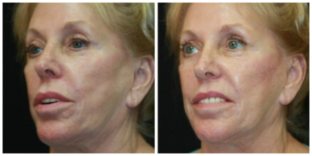 West Palm Beach Juvederm Voluma - Before and After Juvederm Voluma West Palm Beach