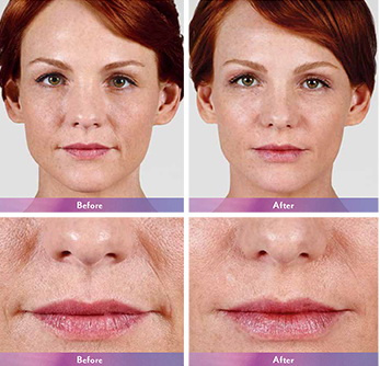 West Palm Beach Juvederm - Before and After Lip Augmentation West Palm Beach